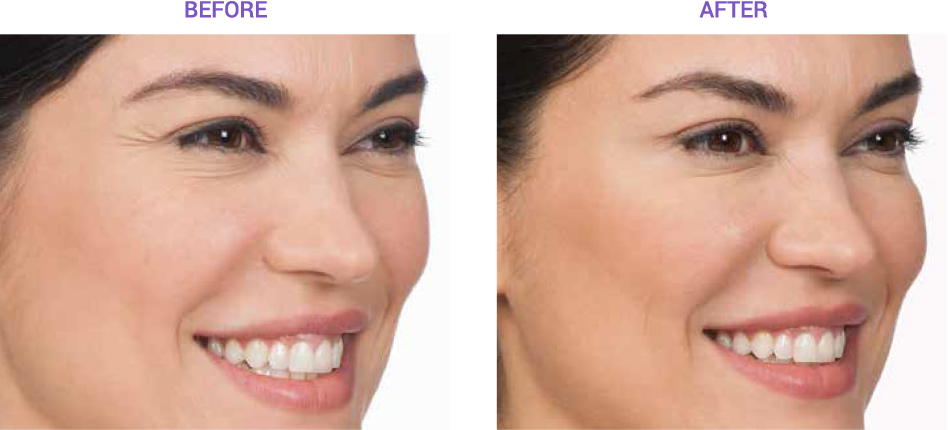 View the effects of Botox with before and after images