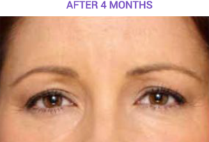 4 months after botox