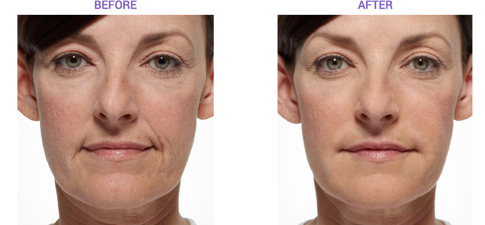 View Before and After images of dermal fillers