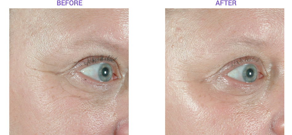 Sublative Laser Procedure Before and After