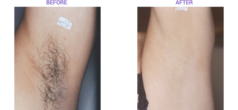 Elos Laser Hair Removal Before and After