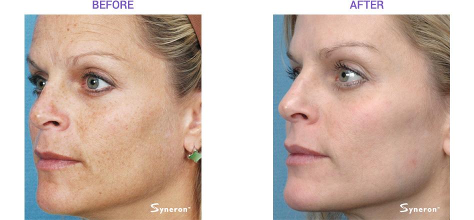 Syneron Skin Rejuvenation San Diego