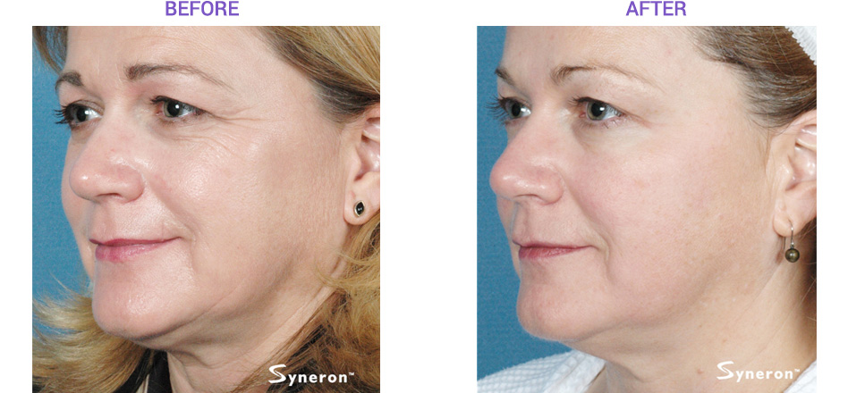 San Diego Sublime Laser Before and After