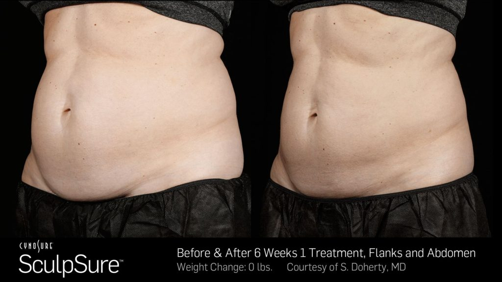 SculpSure Results After One Treatment